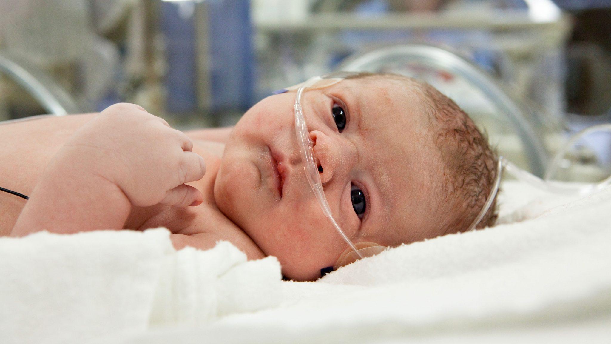 Фото:Гестоз у новорожденных